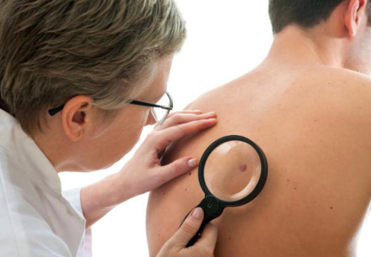 Should You Be Afraid of Having Skin Tags?