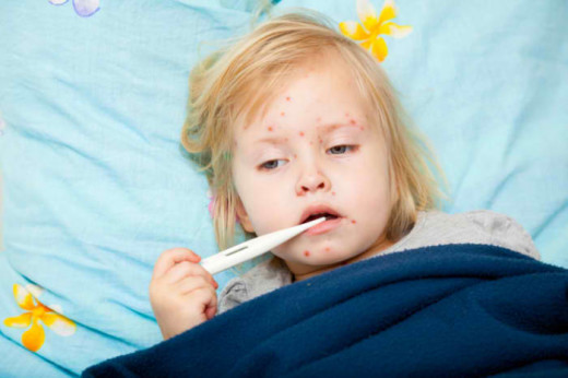 CDC Reports Measles Cases got its Highest Level after nearly Twenty Years